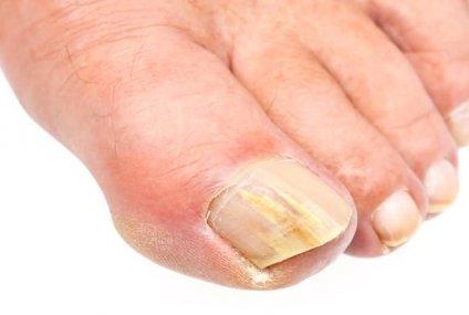 китайские средства от грибка ногтей отзывы