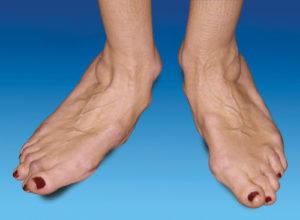 Деформация стопы в результате артрита