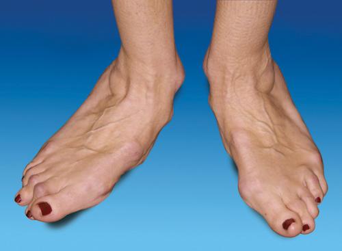 Ванга суставы ступней болит колено после ушиба что