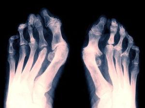 Рентген снимок артрита стоп