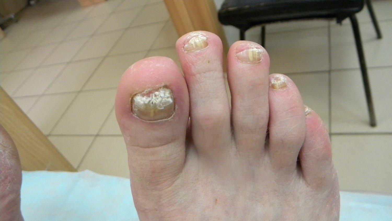 Бывает ли боль при грибке ногтя