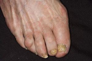 запущенная стадия грибка на ногах пальцев ног