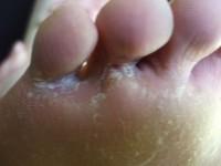 Грибковое поражение пальцев ног