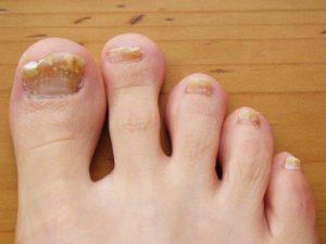 Такой неэстетичный вид имеют ногти, поражённые грибковой инфекцией