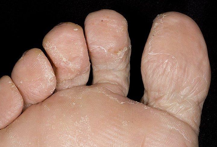 Что делать, если слезает кожа на ступнях ног?