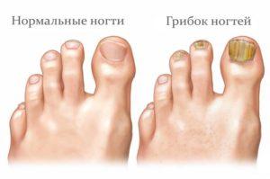 здоровая больная нога