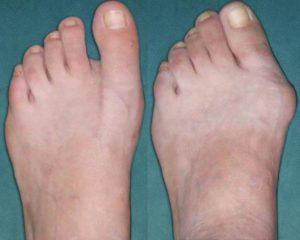 Пример шишки пальца
