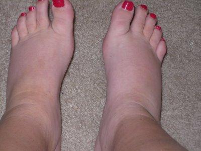 Опухла стопа ноги и болит чем лечить