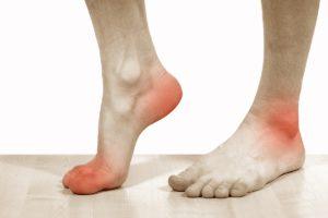 Болевые ощущения в стопах при ходьбе