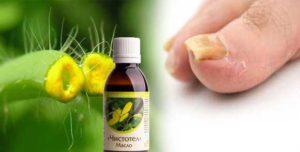 Масло чистотела для лечения грибка ногтей