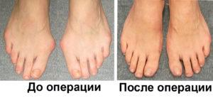 Так выглядят ноги после операции по удалению косточек на больших пальцах ног