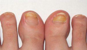 как выглядит грибок на ногтях