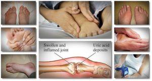 Физиотерапия – важная методика оздоровления