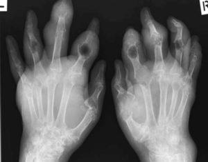 Рентгеновской снимок на поздней стадии болезни
