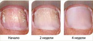 восстановление ногтя при использовании антигрибкового лака