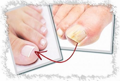 Лак для ногтей для лечения грибка: особенности, обзор, выбор лучшего