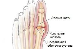 Подагра сустава большого пальца
