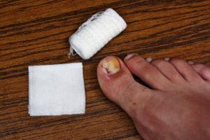 Перед наложением компресса необходимо тщательно вымыть ноги
