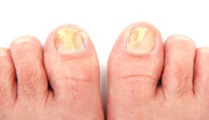 Вид ногтей, поражённых грибком