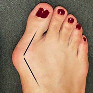 Причины появления косточки на большом пальце ноги