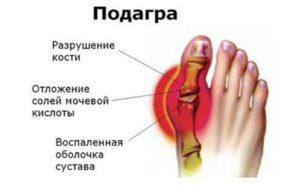 Боль в большом пальце ноги: причины и лечение