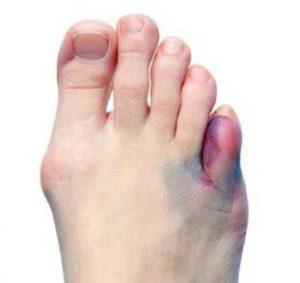 Что делать при переломе пальца на ноге как определить и быстро вылечить