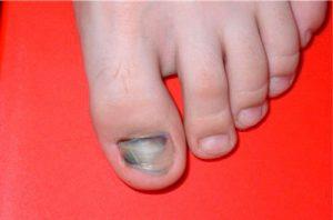Почему синеют ногти на ногах
