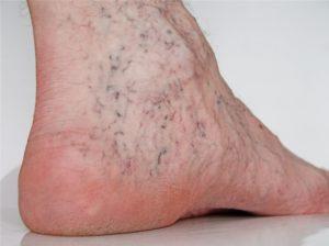 Шишка на ноге сбоку с внутренней стороны стопы
