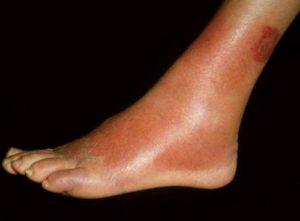 Рожистое воспаление, локализованное на ноге