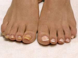 Ногти на больших пальцах ног пожелтели
