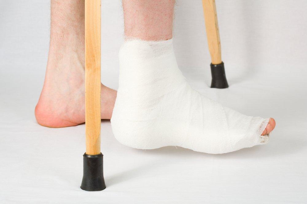 Перелом стопы: симптомы и лечение