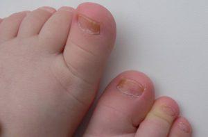 У ребенка плоские ногти на ногах