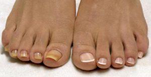 Начальная стадия грибка ногтей