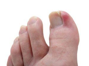 Гной под ногтем на большом пальце ноги: что делать и как лечить