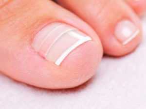 Грибок на ногтях рук как передается