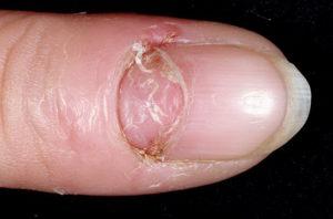Ноготь отходит от ногтевого ложа на ноге