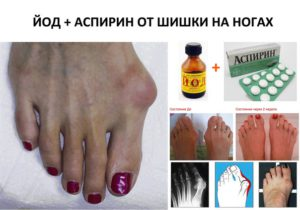 Косточка на большом пальце ноги - лечение в домашних условиях