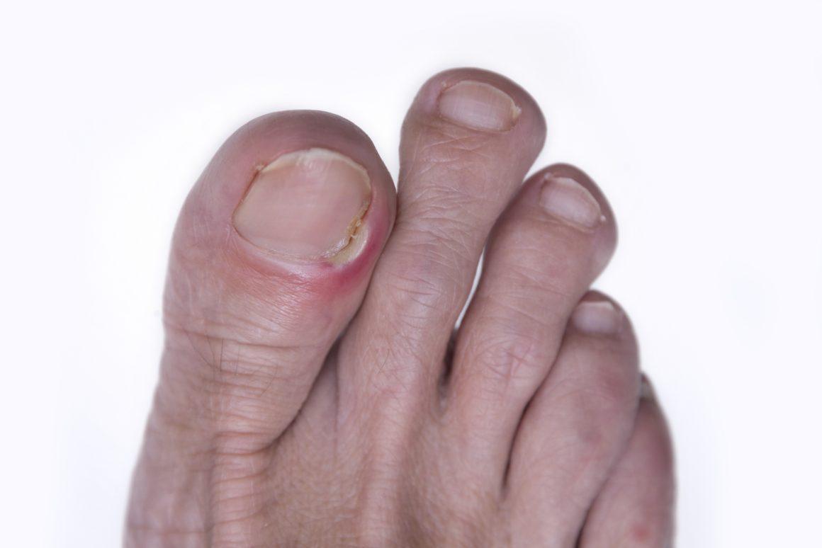 Воспаление вокруг ногтя большого пальца ноги