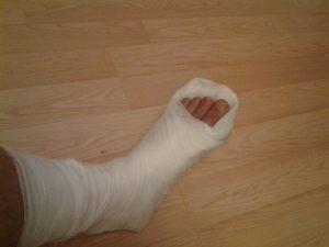 не наложили гипс при переломе пальца