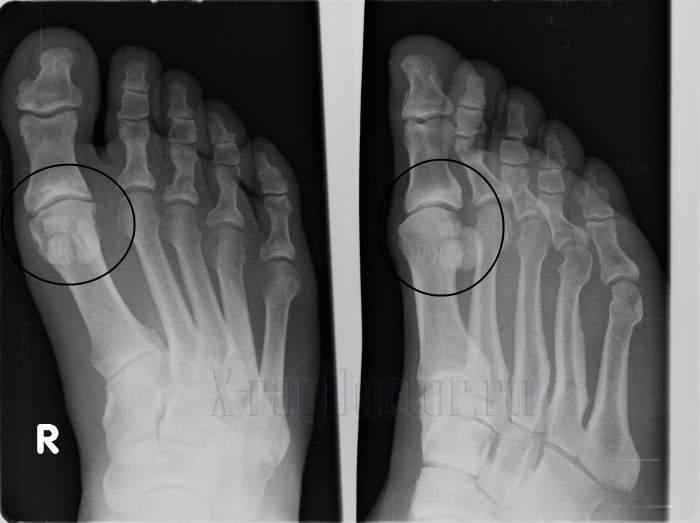 Артрит плюснефалангового сустава стопы