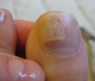Ноготь отходит от ногтевого ложа на ноге лечение — Пальцы рук и ног