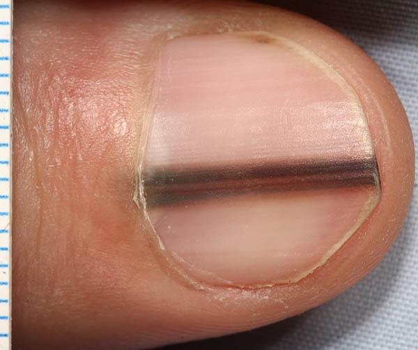 Нарывает палец у ногтя на ноге чем лечить