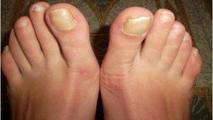Желтые ногти ног