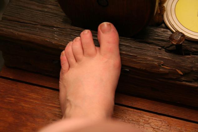 Лопается кожа между пальцами ног. Как лечить кожу