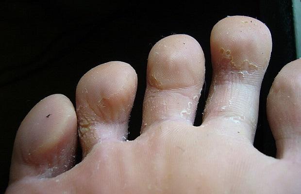 На обуви слезает кожа 104