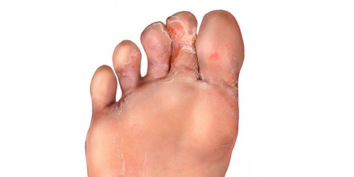 Лечение шелушения и зуда между пальцами ног