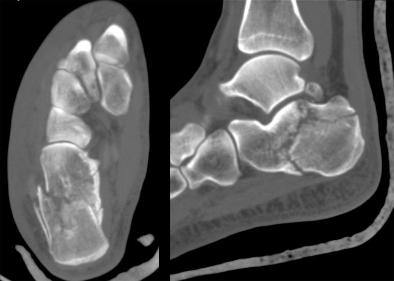 Перелом левой пяточной кости