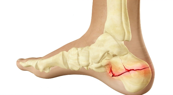 Как правильно лечить трещину и перелом пяточной кости