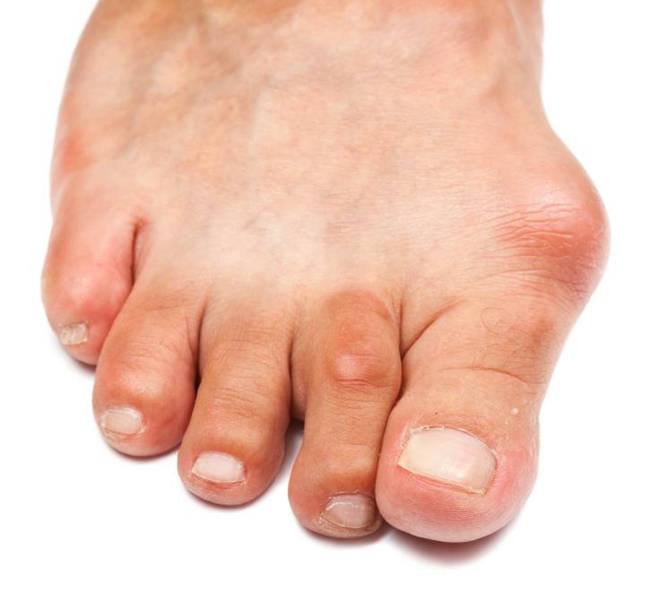 Не могу наступить на большой палец болит. Болит большой палец на ноге: причины, симптоматика, лечение