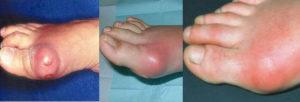 Симптомы подагрического артрита стопы